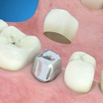 implantes dentales imagenes