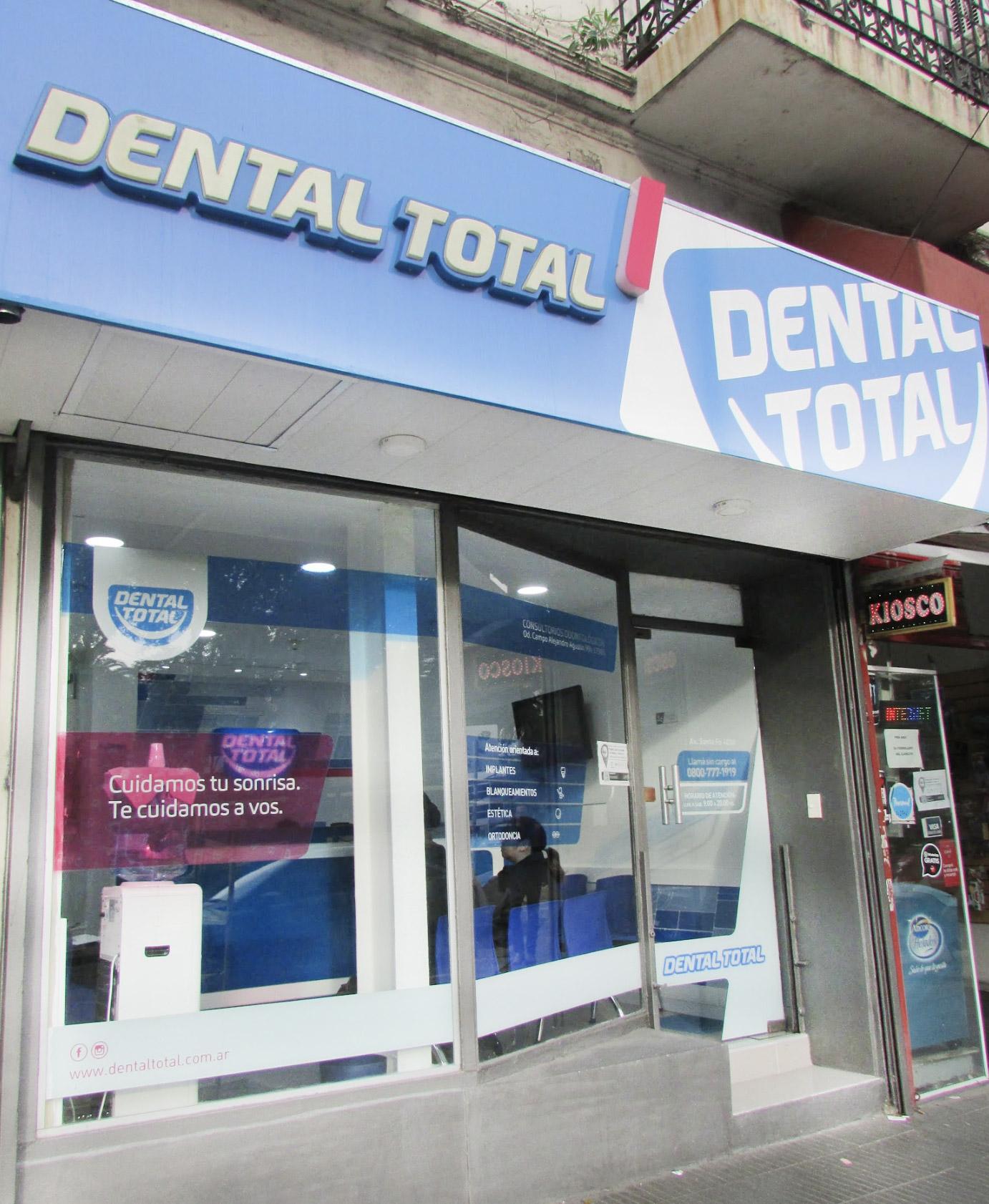 Implantes dentales enPalermo